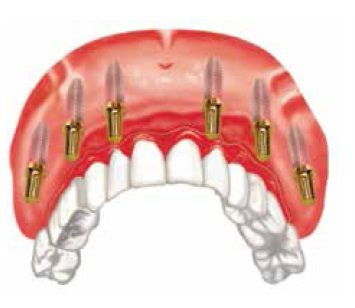 NYS full mouth dental implant restorative system to launch in Ch